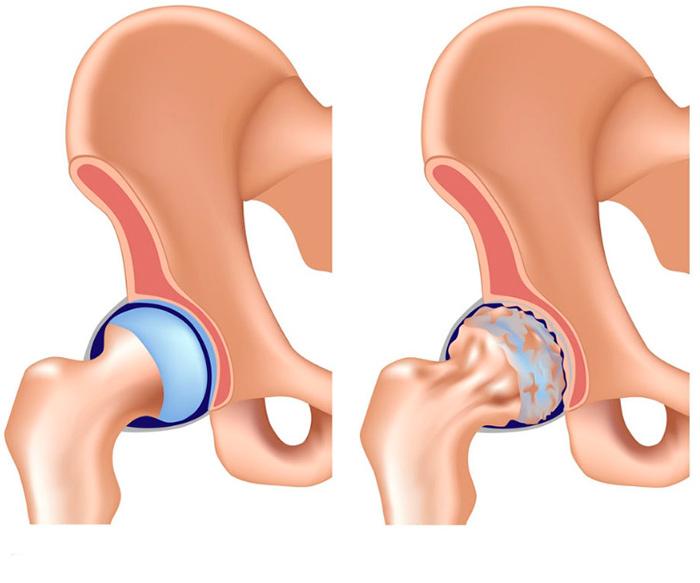 Здоровый тазобедренный сустав и сустав подверженный артрозу