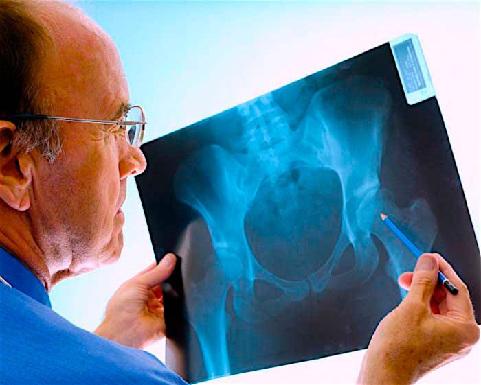 Диагностика чрезвертельного перелома бедра у пожилых