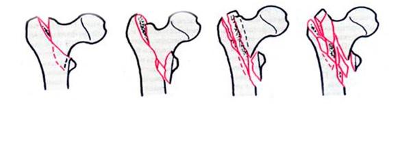 Классификация чрезвертельных переломов бедра