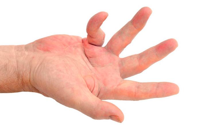 Симптомы контрактуры суставов