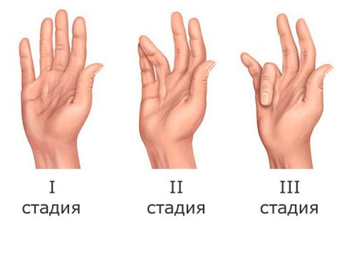 Степени развития контрактур