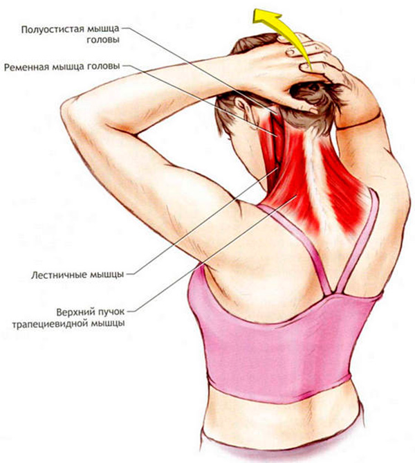 Растяжка шеи при воспалении мышц