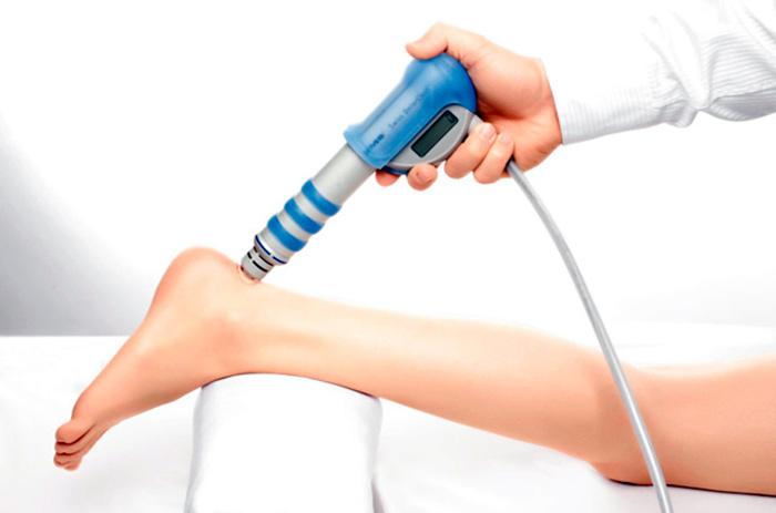 Ударно-волновая терапия для лечения тендита ахиллова сухожилия