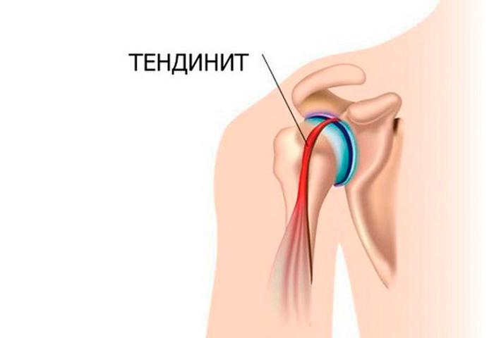 Образование тендинита плечевого сустава