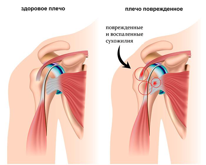 Образование тендинита сухожилия надостной мышцы плеча