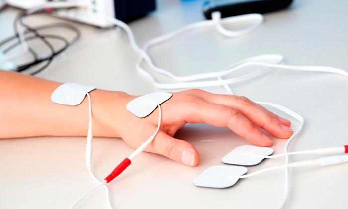 Электрофорез с лидазой для лечения тендинита кисти руки