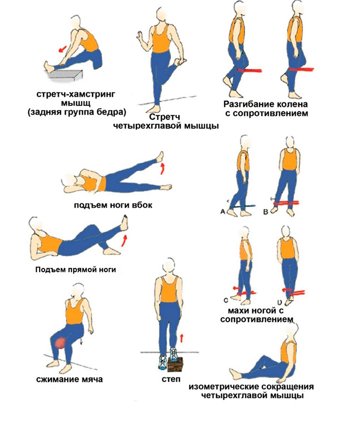 Упражнения ЛФК при тендините коленного сустава