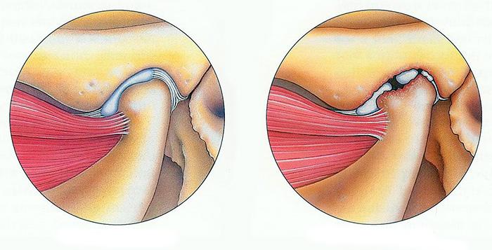 Здоровый сустав и сустав пораженный тендинитом