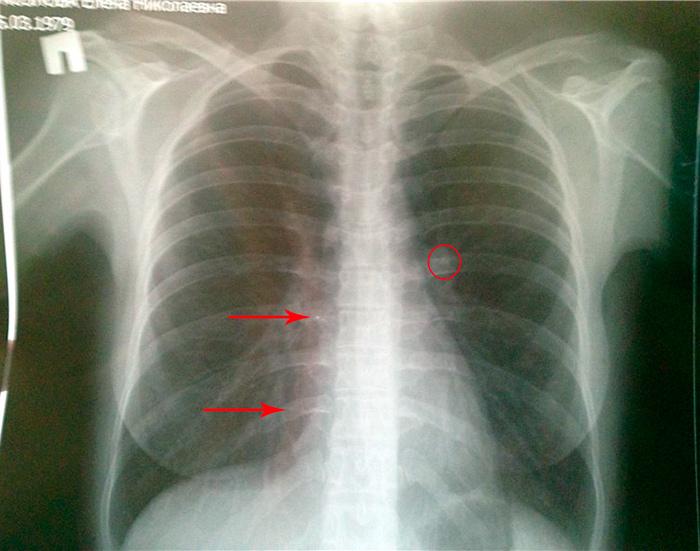 Рубцы на легких после пневмонии