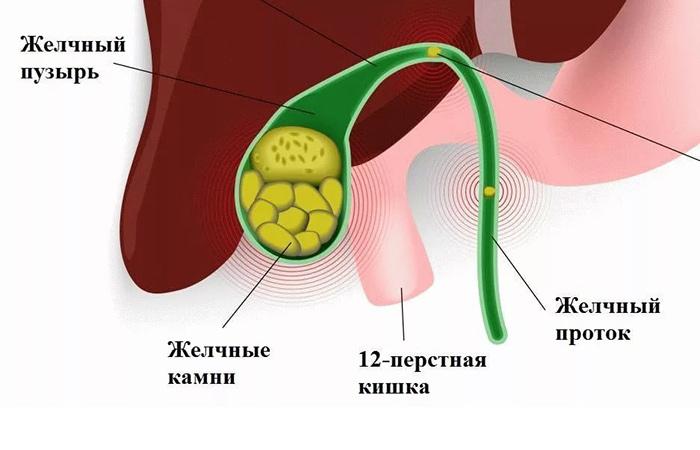 Строение желчного пузыря человека