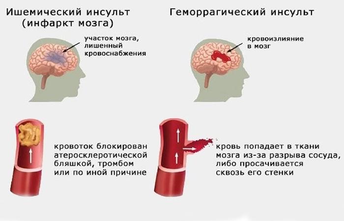 Виды мозгового инсульта