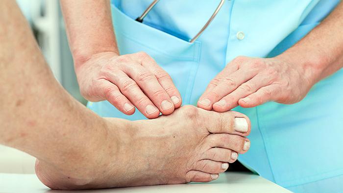 Диагностика вросшего большого пальца на ноге