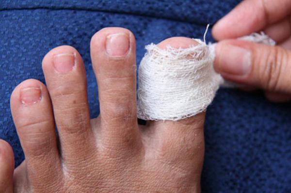 Компресс с лекарственными травами поможет в лечении вросшего ногтя